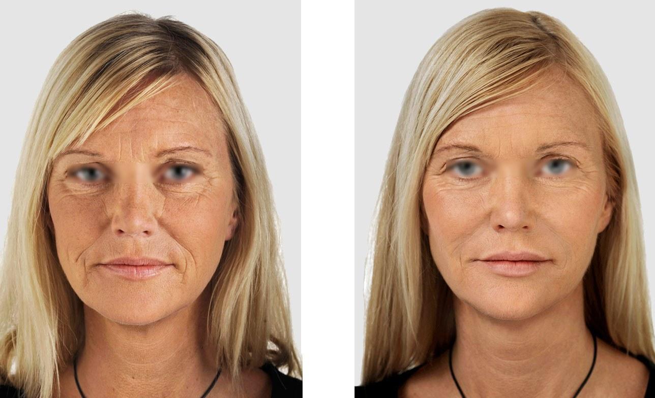 Контурная пластика лица – фото до и после