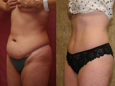 как реально похудеть после 45 лет