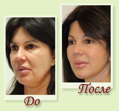 бионити для лица фото до и после